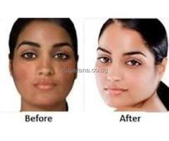 Skin lightening/whitening cream and pills +256752175795